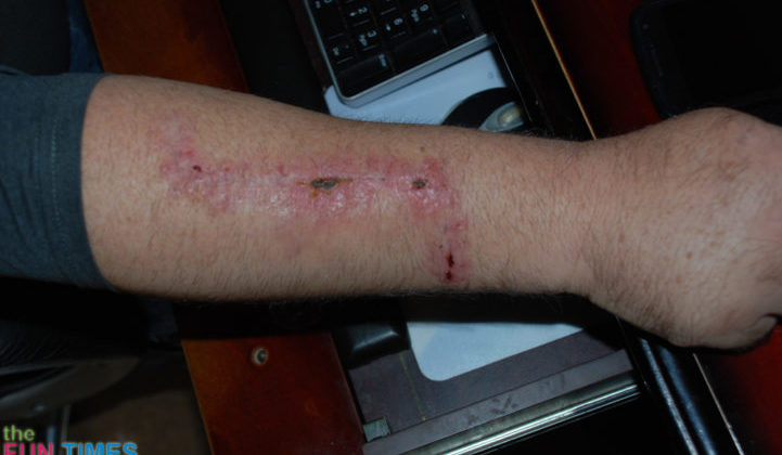 19-days-after-melanoma-skin-cancer-surgery