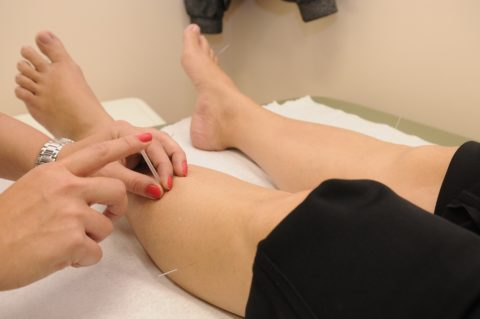 acupuncture treatments are not painful as some might think