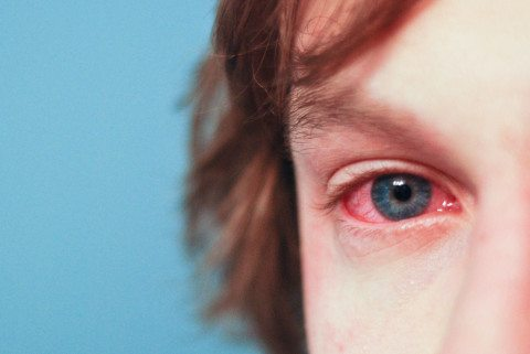 allergy red eye