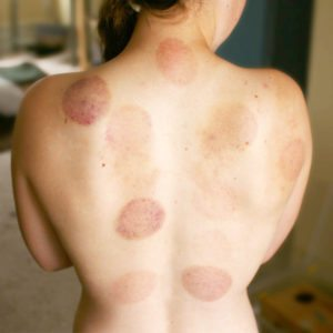 cupping-bruises