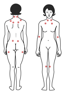 fibromyalgia-tender-points