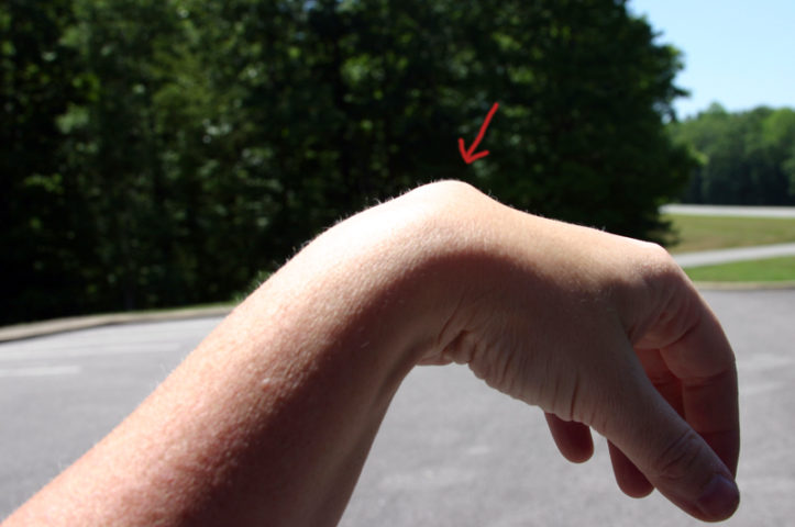 What Is A Ganglion Cyst Is Ganglion Cyst Treatment Necessary