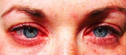 Indoor allergens can cause red, itchy, teary eyes. photo by parrchristy on Flickr