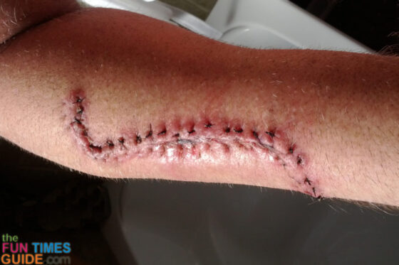 melanoma-cancer-incision-11-days-after-surgery