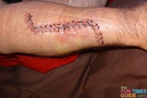 melanoma-cancer-incision-5-days-after-surgery