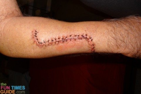 photo-3-days-after-melanoma-skin-cancer-surgery