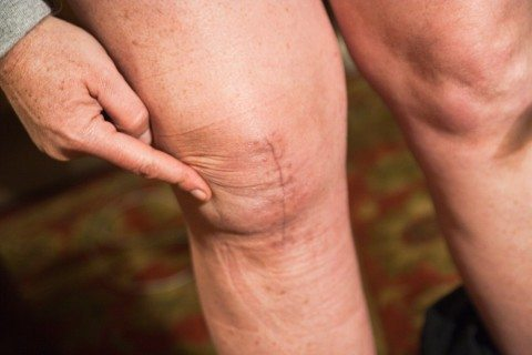 photo-after-knee-replacement-surgery