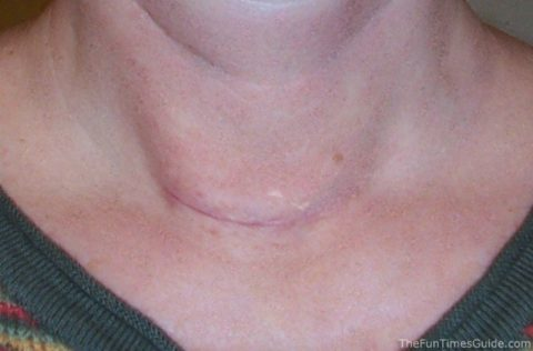 thyroid scar photo - 1 month post thyroid surgery photo