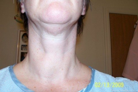 thyroid surgery was a must for me because I had a non-cancerous nodule (visible here)