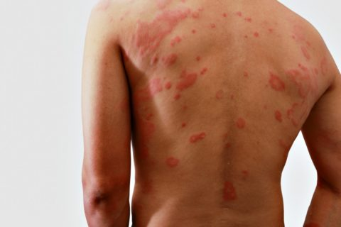 shingles symptoms can appear like a large splotchy rash - but there are home remedies for shingles that help