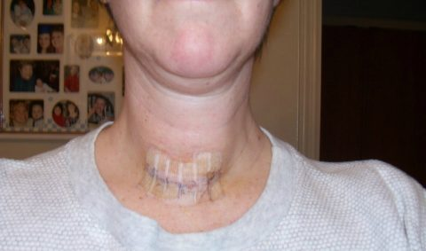 thyroid surgery photos - thyroid scar photo 5 days post operation