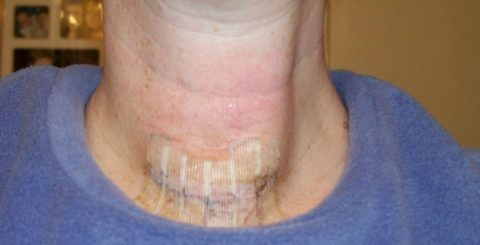 thyroid surgery recovery - thyroid scars