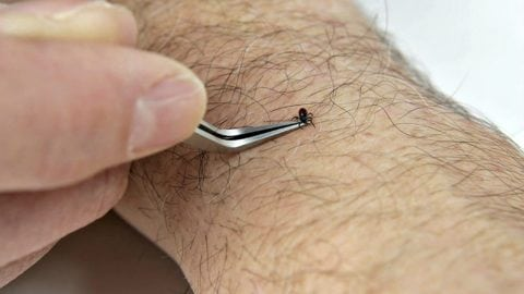 Using the TickEase tick removal tool to remove a tick from a human arm.